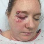 At the ER after being hit by a thrown bat at the Sept 2nd Arizona Diamondbacks vs Toronto Blue Jays baseball game.